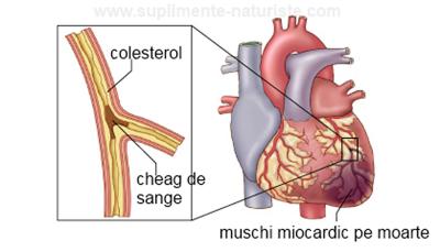 infarct-de-miocardtratament-cu-lipitoriboli-cardiovasculareateroscleroza-Копировать
